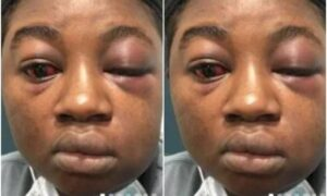 I Was Beaten And Raped Every Night'- Lady Shares Traumatic Experience In The Hands Of Kidnappers!!